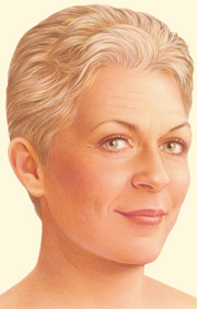 Face Lift Surgery Illustration