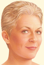 Facelift facts