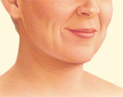 Facelift Patient Fort Lauderdale