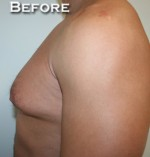 Gynecomastia (Male Breast Reduction Surgery)