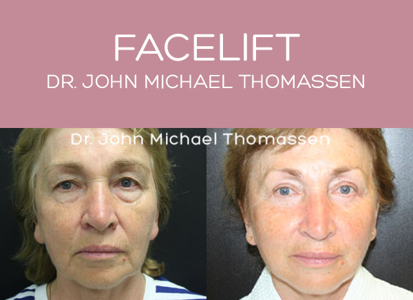 Facelift Fort Lauderdale