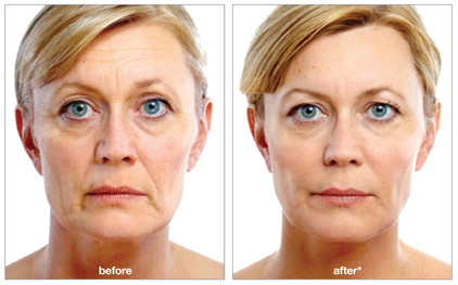 juvederm-voluma-xc-injectable-ft-lauderdale