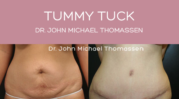 Tummy Tuck Fort Lauderdale