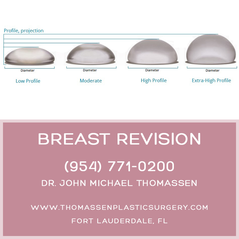 Breast Augmentation Revision Fort Lauderdale