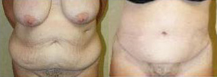 Body Contouring Before & After - Dr. Thomassen