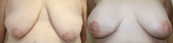 Breast Reconstruction Before & After - Dr. Thomassen