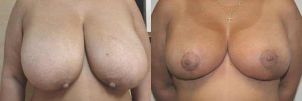 Breast Reduction Before & After - Dr. Thomassen
