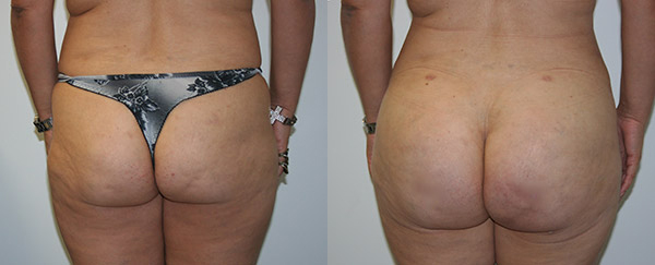 Buttock Augmentation Before & After - Dr. Thomassen