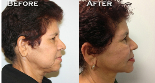 Facelift Before & After - Dr. Thomassen