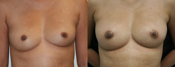 Fat Grafting Before & After - Dr. Thomassen