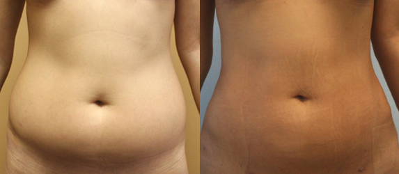 Liposuction Before & After - Dr. Thomassen