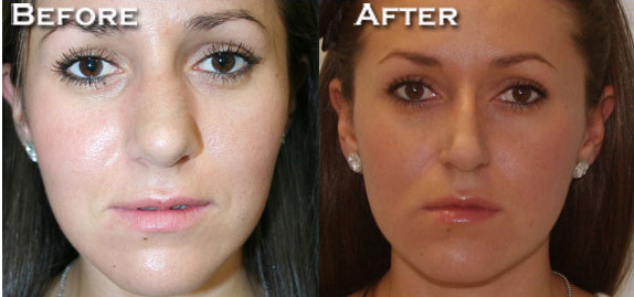 Rhinoplasty Before & After - Dr. Thomassen