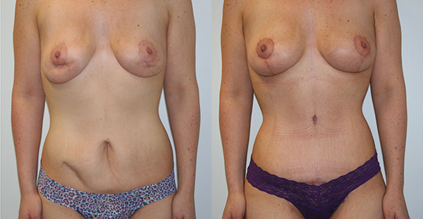 Tummy Tuck Before & After - Dr. Thomassen
